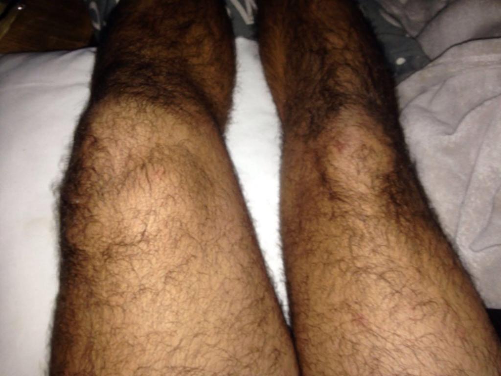 Aspecto que presentaba su rodilla izquierda tras la lesión.